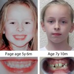 Facial development/ crooked teeth