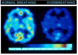 hyperventilation scan